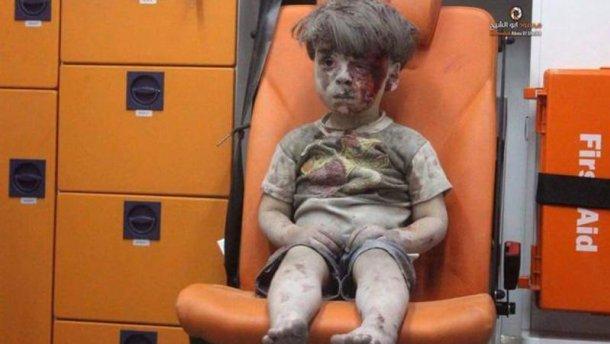 В Сирии умер брат мальчика, фото которого шокировали мир