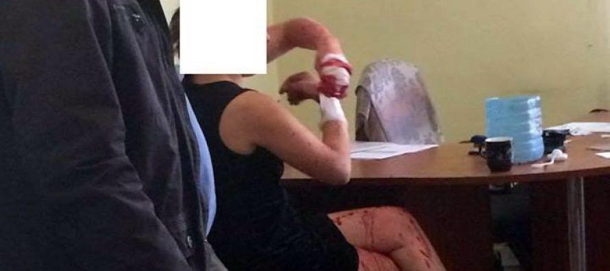 Россиянка устроила кровавый дебош во Львове: опубликованы фото