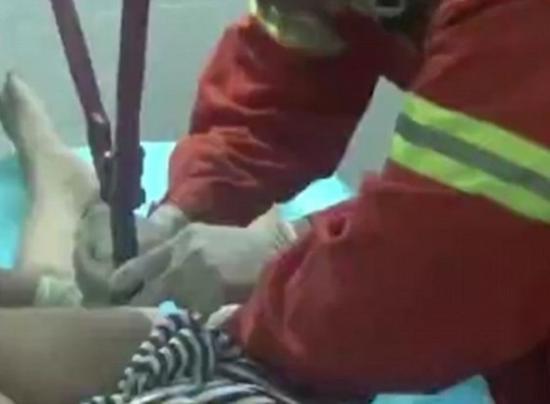 «Последний романтик»: врачи и пожарные спасли китайцу пенис, на который хозяин надел обручальное кольцо