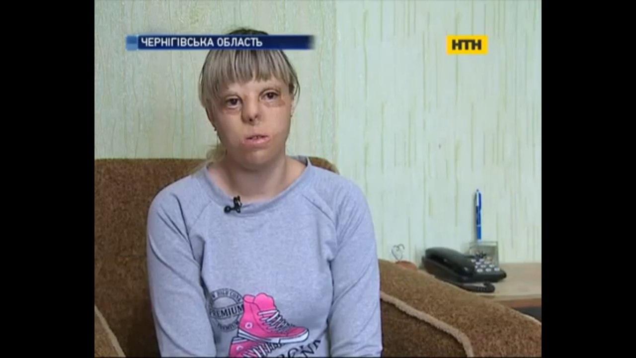 Девочка подожгла родную сестру из-за ревности к отцу