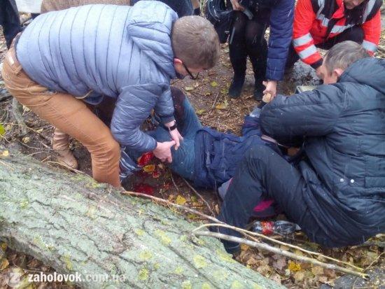 Это что-то ужасное: коммунальщики рубили дерево и покалечили ноги девочке (ФОТО)