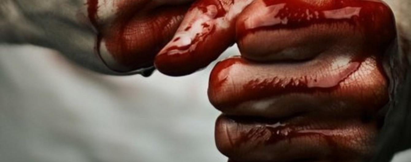 Бьют наших! Четверо поляков жестоко избили украинца за девушку и национальность