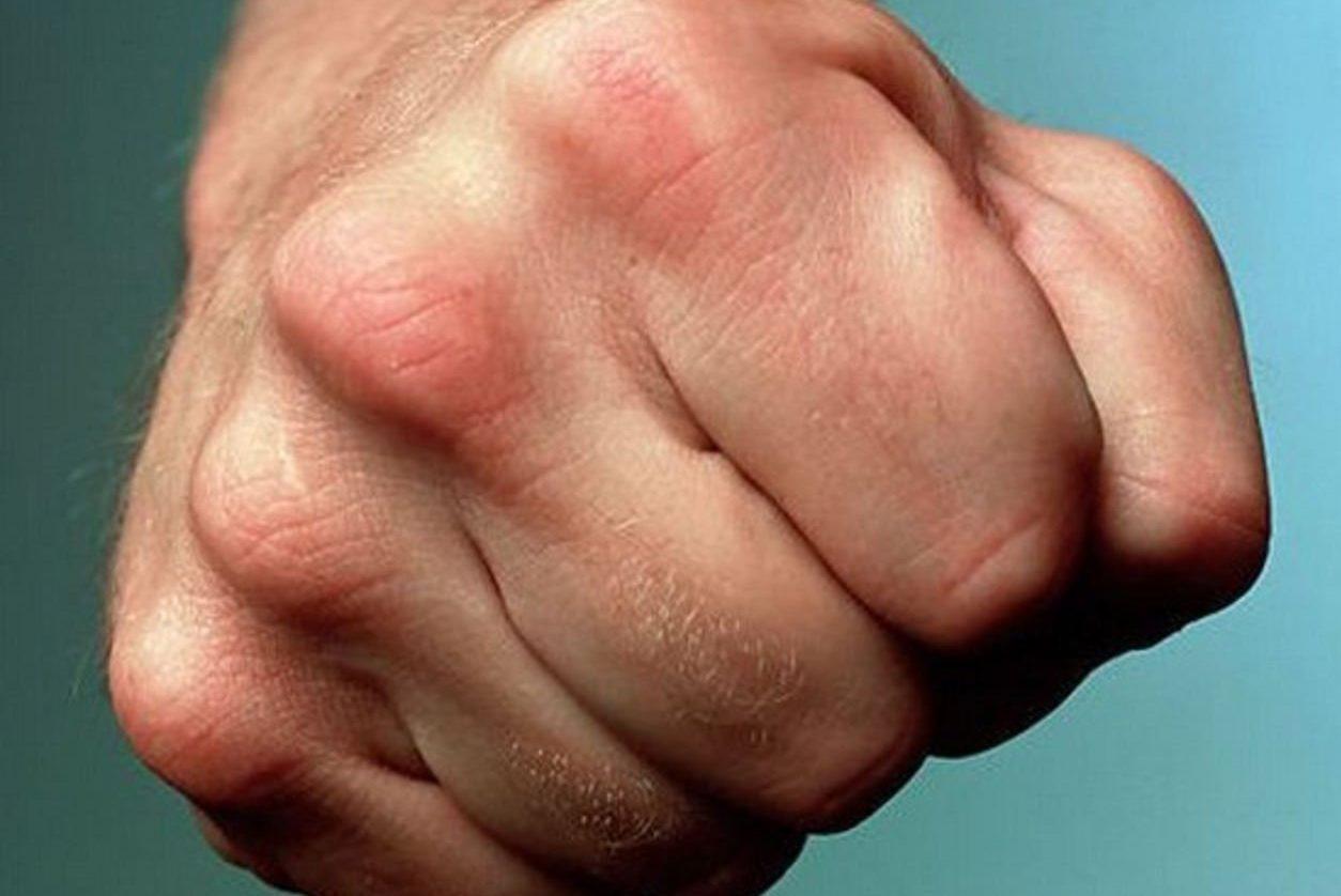 На Закарпатье учитель жестоко избил восьмиклассницу