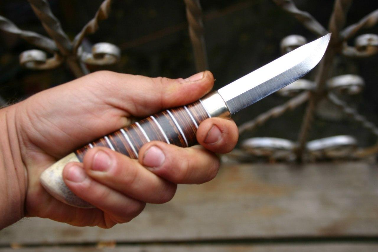 Опасное соседство: Мужчина жестоко изуродовал ножом сожительницу
