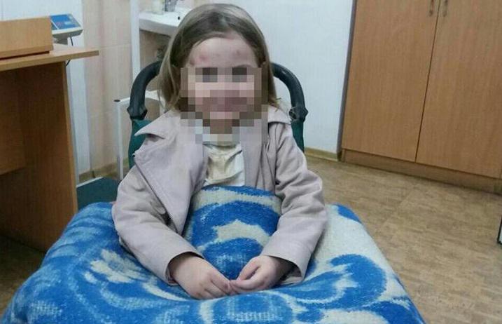 На Тернопольщине дед разбил внучке череп, а затем покончил с собой: подробности шокируют