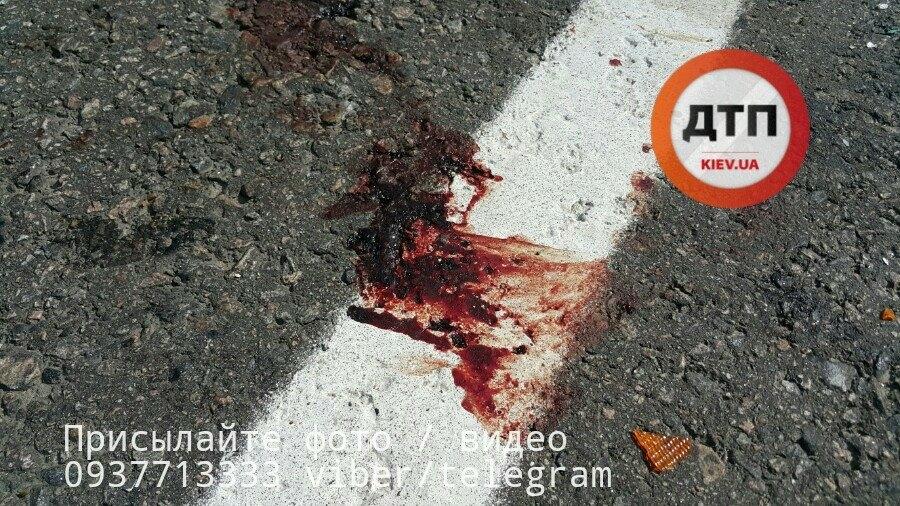 Тело размазало через всю трассу: под Киевом произошла страшная смертельное ДТП, там были реки крови (фото 18+)