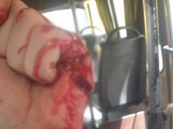 СРОЧНО! В Киеве водитель маршрутки жестоко ранил бойца АТО ножом! Детали просто сбивают с ног (ФОТО)