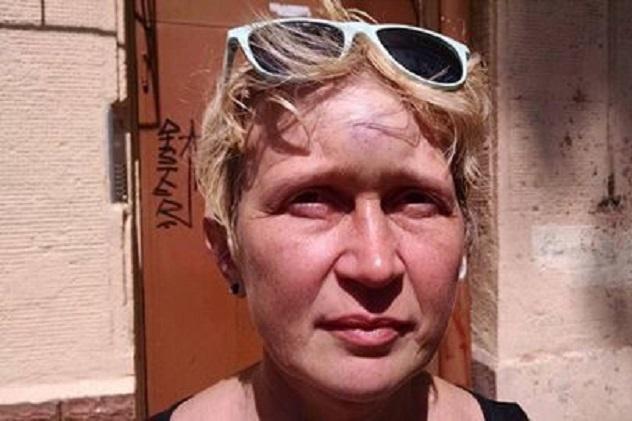 СРОЧНО! Шокирующие детали нападения на известную активистку! От такой жестокости трудно прийти в себя!