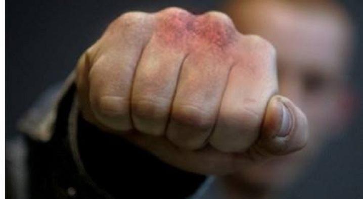 Страшные муки!!! В Александрии мужчину избили до смерти, детали вас потрясут