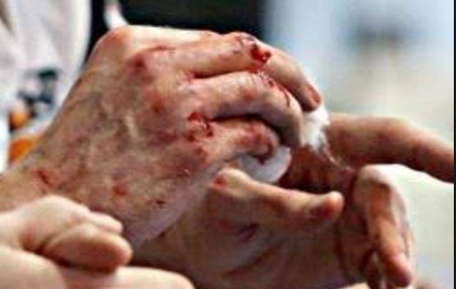 И полисменам досталось! Бешеные пенсионерки устроили жестокую драку. Реки крови лились подъездом (ФОТО)