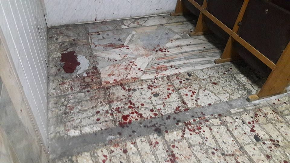 Нелюди!!! Между АТОшниками и экс-беркутовцами произошла жестокая кровавая драка (18+)