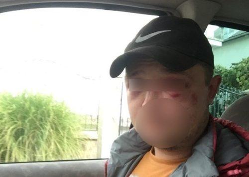 «Жгите им машины, а их бросайте в канаву»: Поездка по грибы в Закарпатья закончилась… Человеческая жестокость пугает