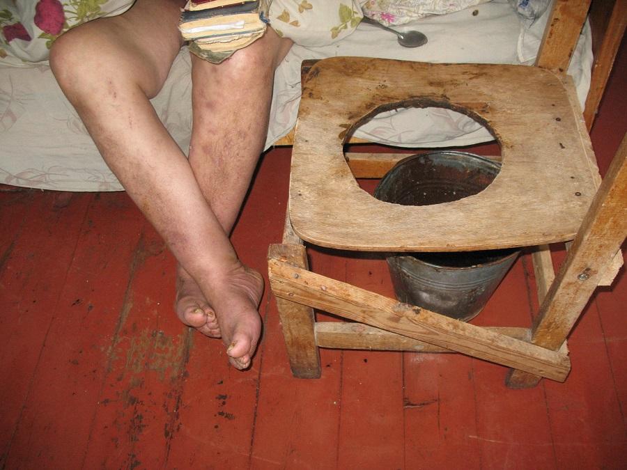 Годами не выходят и белье только по праздникам: Нечеловеческие условия существования в психоневрологическом интернате на Львовщине