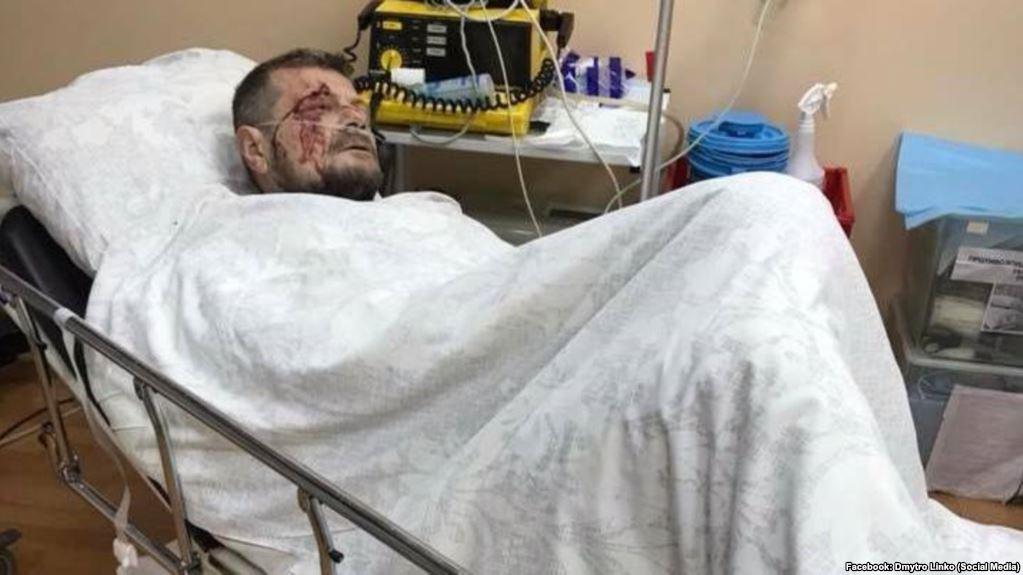«На самом деле убить хотели другого: Новые подробности покушения на Мосийчука