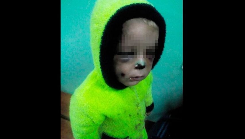 «Пришла уставшая, а сын капризничал»: на Житомирщине мать жестоко избила сына и сломала ему нос