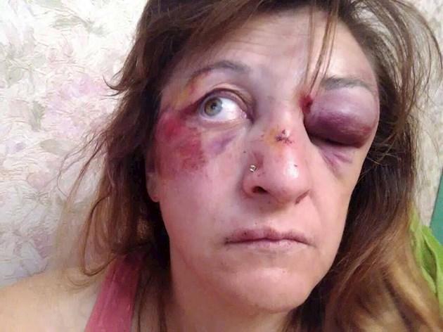 Жестоко избили и угрожают расправой над детьми. В Киеве «наказали» врачей, которые выступили против коррупции