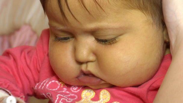 «Девочка родилась без желчевыводящих путей, ежедневно мучается»: маленькая Виктория из Львовщины надеется на вашу помощь
