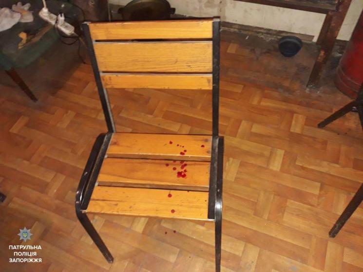 «Затянули в гараж и жестоко избили» В Запорожье трое неизвестных выбивали деньги из парня