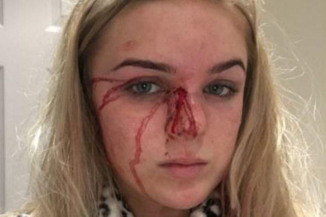 «Проскользнула на улицу через окно, абсолютно голой…»: Девушка год позволяла парню бить и насиловать ее (ФОТО)