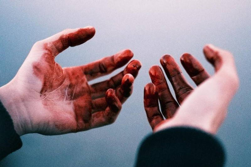 «Переломы костей лица и ребер»: На Львовщине родной сын до смерти забил отца