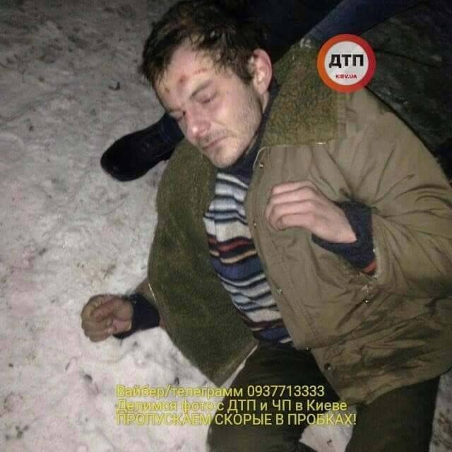 «Он был синий и изо рта шла пена»: в Киеве врачи избили человека и бросили на улице