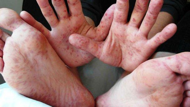 «Взрослым людям, кто уже переболел корью…»: Известный врач сделал неожиданное заявление о вакцинации
