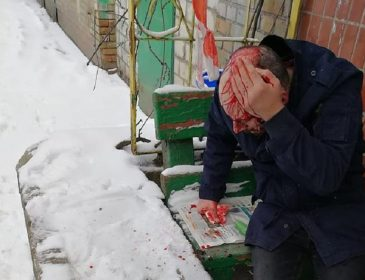 «Выходил из подъезда, и вдруг…»: Мужчину жестоко избили возле пункта полиции