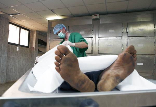«Патологоанатом мало с ног не свалился»: «Погибший» в ДТП мужчина проснулся за пару минут до вскрытия