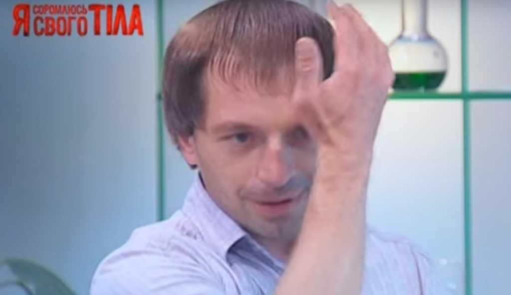 «Болгаркой отрезало часть головы …»: Украинцев шокировала история участника шоу «Я стесняюсь своего тела»