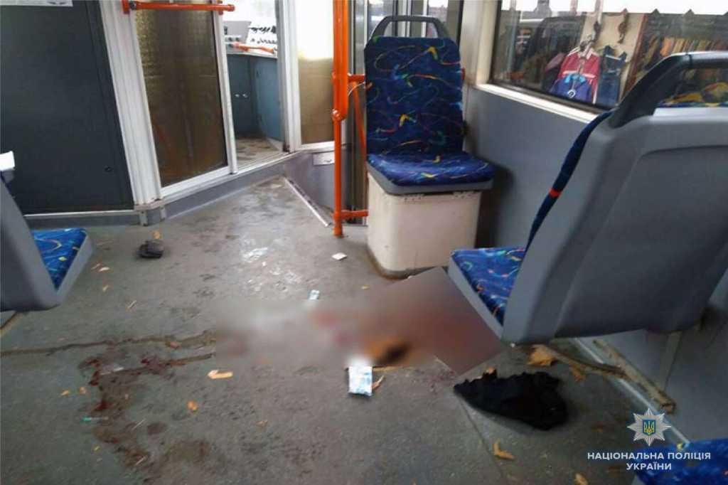 «Очень тяжелая травма, открытый перелом»: Пострадавшей от трамвая отрезали кусок ноги
