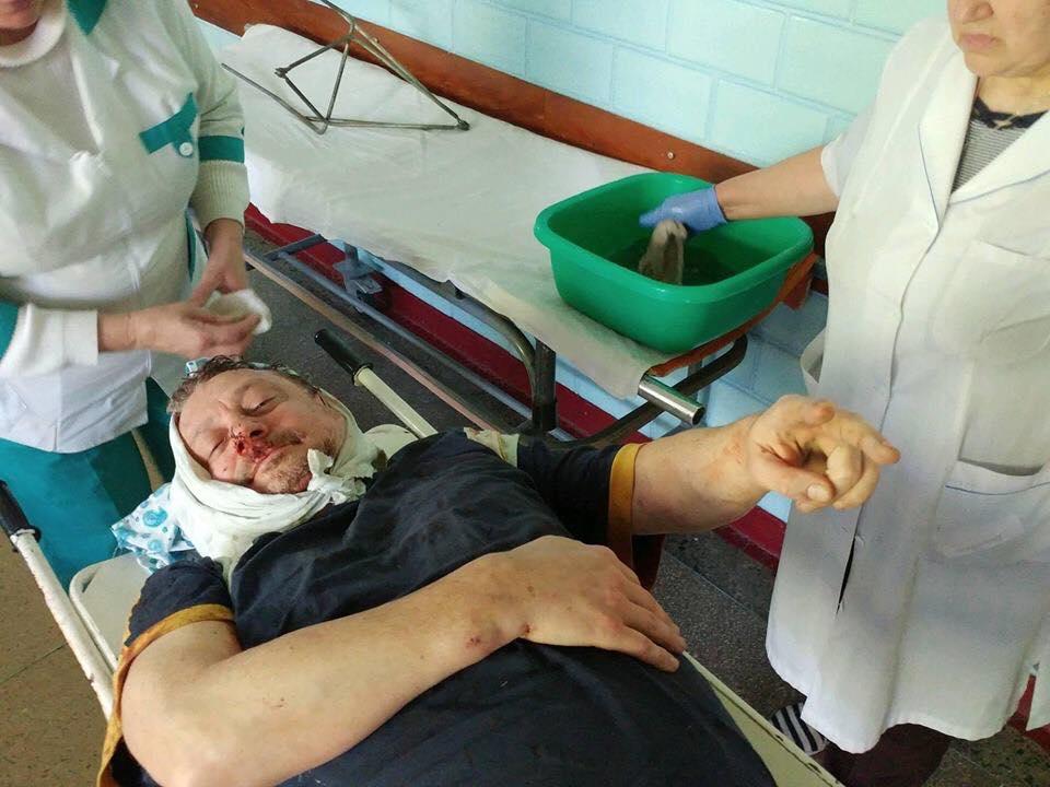 Выступил против Порошенко: Вооруженные люди ворвались в дом активиста и начали жестоко избивать