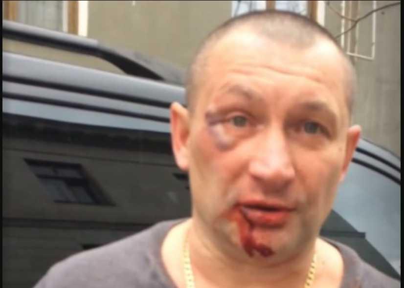 «Потому, что» укроп и ф * шист «»: В Крыму жестоко избили мужчину только потому, что он украинец