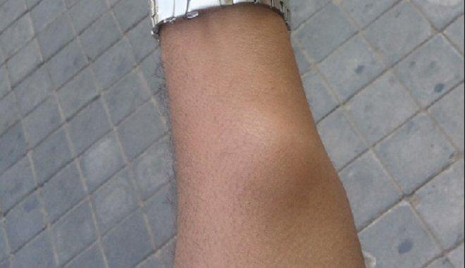 «После укуса комара…»: Украинец извлек из под кожи настоящего «монстра». Это жило в нем несколько недель