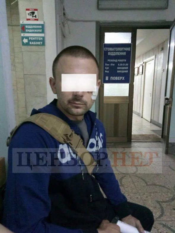 «Враг выстрелил ему в лицо»: Украинский боец чудом выжил в ожесточенном бою, а теперь …