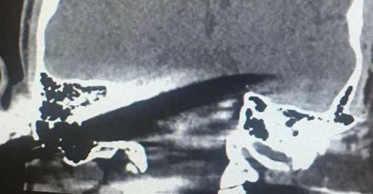 «Он просто сделал замечание»: Мужчине в голову воткнули нож (фото 18+)