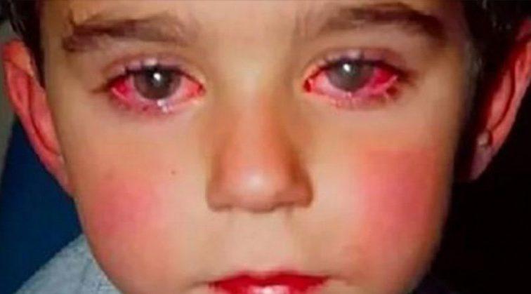 Невинная игрушка лишила ребенка самого важного: Маленький мальчик потерял 75% зрения через популярную покупку родителей