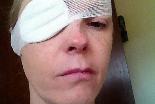 «Я не могла говорить в течение двух лет»: Женщине парализовало лицо, а все из-за укуса …