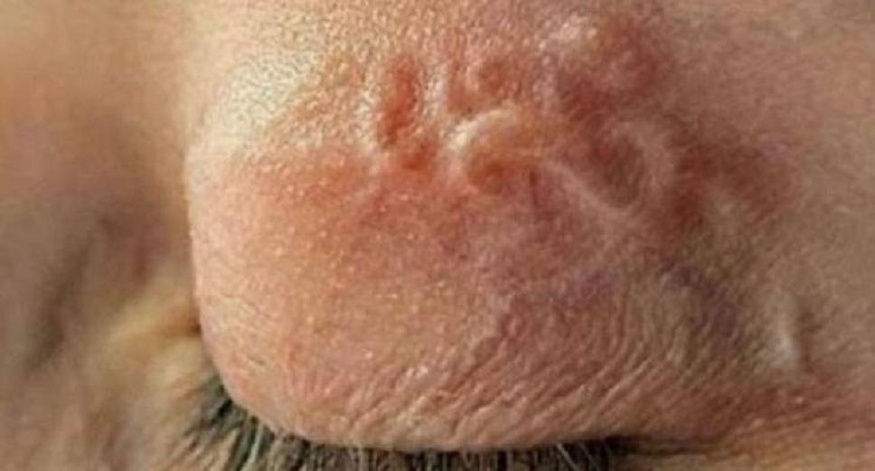 «Такое может быть у каждого…»: У женщины на Полтавщине вытащили из глаза 12-сантиметрового червя