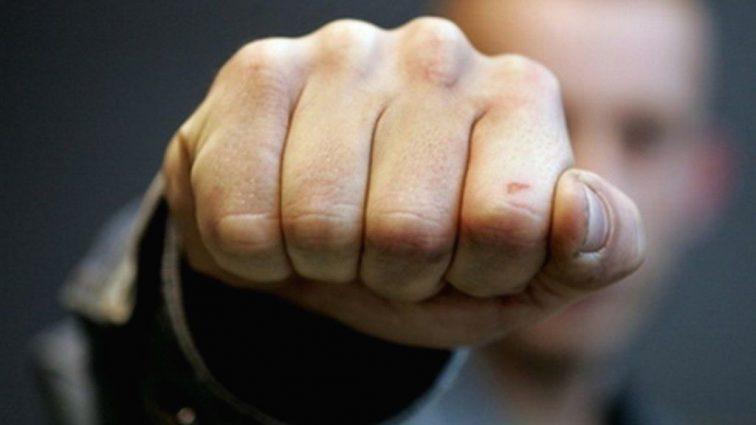 «Пожаловался администратору, а в ответ получив удары по голове»: Сотрудник «Эпицентра» жестоко избил покупателя