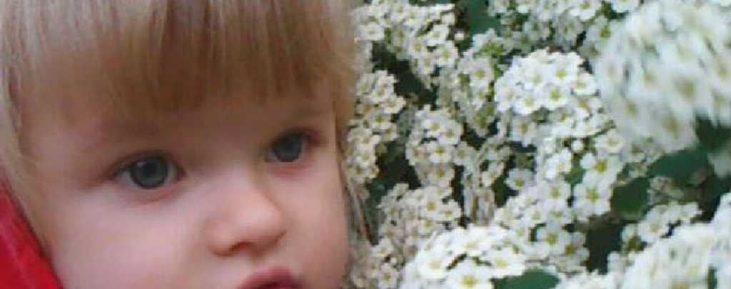 Несчастный случай изуродовал ребенку жизни: маленькой Валаде нужна ваша помощь