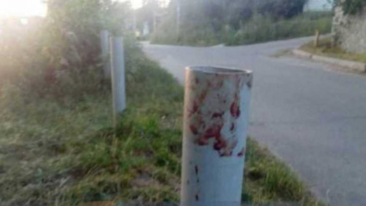 «Били пока не потеряла сознание»: Женщину жестоко избили из-за замечания (ФОТО)