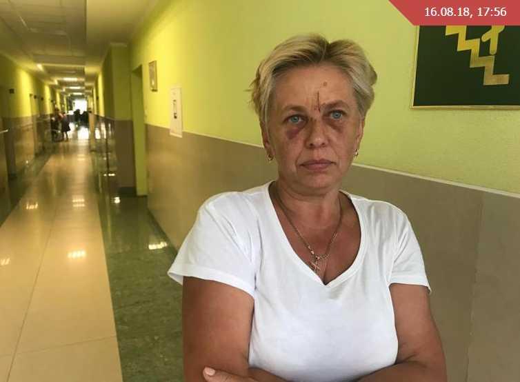 «Ударил со всей силы и я упала под машину»: Пьяные мужчины избили врача скорой помощи, которая приехала на их вызов