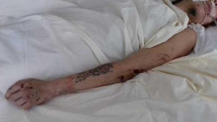 Без сознания лежит в реанимации «неизвестна»: стали известны подробности ДТП в Киевской области