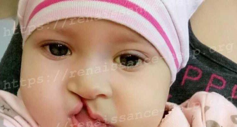 Родилась со многими недостатками: Маленькая Вероника нуждается в вашей помощи