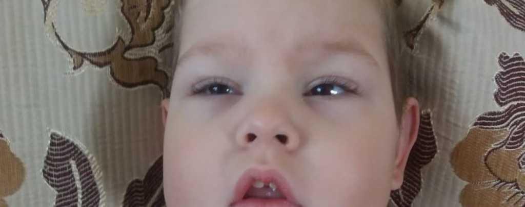 С самого рождения тяжелая болезнь преследует мальчика: Дима нуждается в вашей помощи