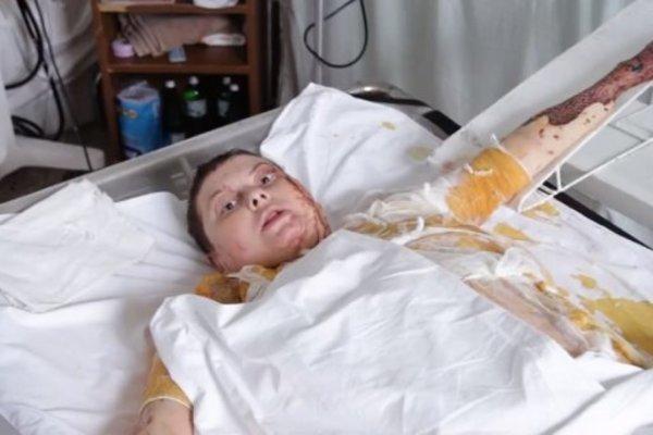 » Терпела адские муки »: Рассказал о последних днях жизни Гандзюк