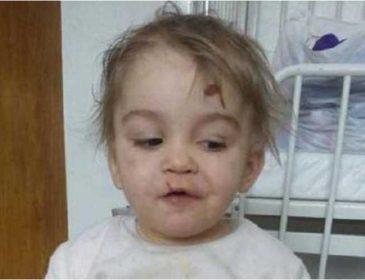 Нет живого места: На Львовщине мать жестоко избила свою четырехлетнюю дочь