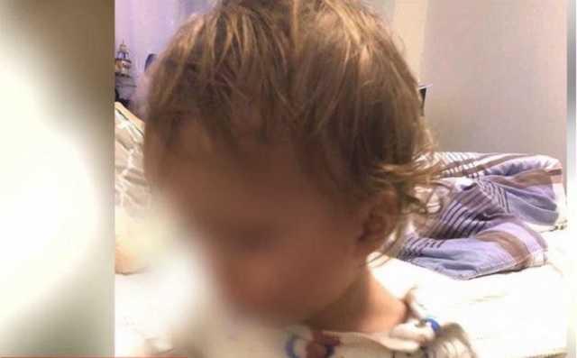 """"""" Все в гематомах"""": в Одессе няню обвинили в избиении малыша"""