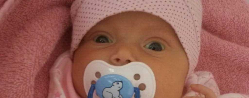 Ребенку срочно нужна сложная операция: помогите маленькому ангелу, Еве