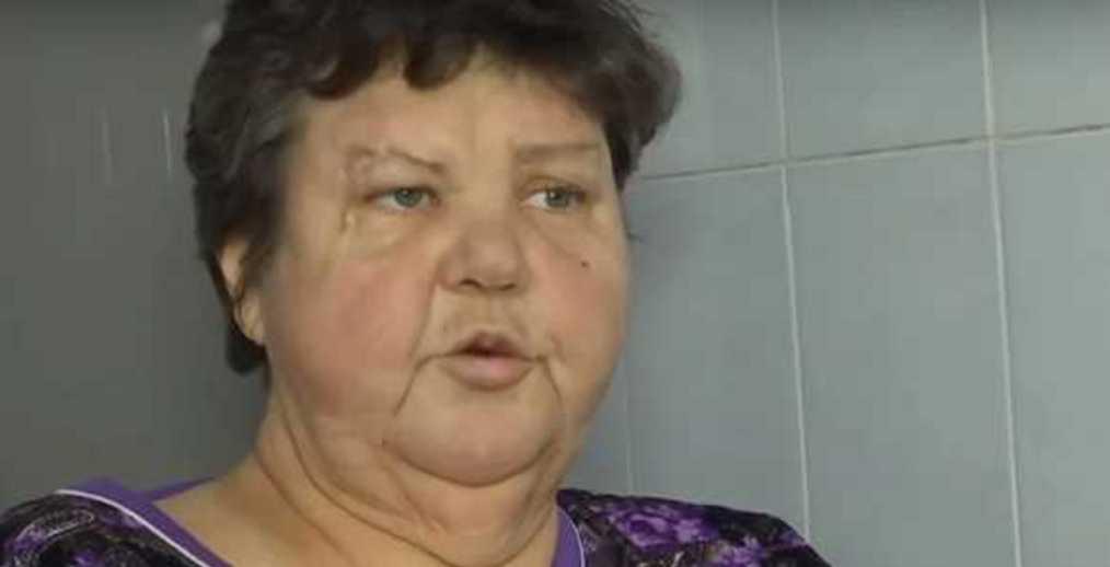 «Ничего не делали 2 дня, а когда стало совсем плохо»: врачи ампутировали женщине вывихнутую ногу